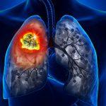 Врачи назвали необычные симптомы рака легких на лице