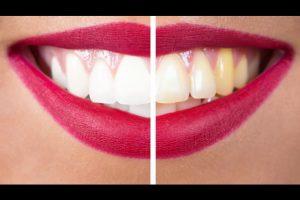 Стоматолог или домашнее отбеливание?