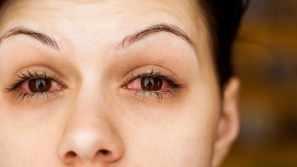 Россиян предупреждили о глазном гриппе, от которого нет лекарств