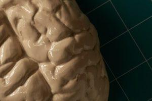 FDA одобрила контрастное вещество для выявления скоплений тау-белка