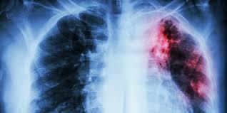 Туберкулез выживает за счет ресурсов человека