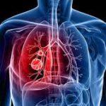 В РФ  зарегистрирована новая терапия мелкоклеточного рака легкого