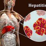 Вирусный гепатит Е