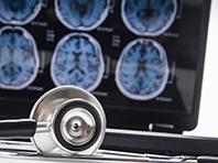 Неврологи представили новый способ ранней диагностики болезни Альцгеймера