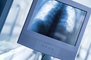 Минздрав утвердил новые правила проведения рентгенологических исследований