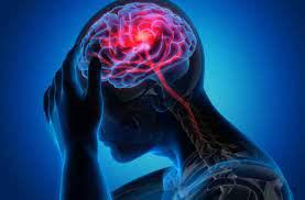 Неврологи говорят о способности COVID-19 вызывать особые аномалии