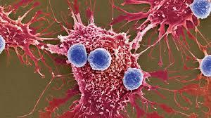 Исследователи нашли способ, блокирующий метастазирование рака