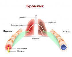 Современные исследования хронического бронхита