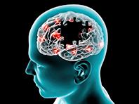 Простая проверка покажет, кто пострадает от болезней головного мозга