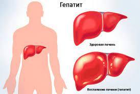 Чем опасен гепатит В
