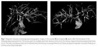 IgG4-сопряженная патология: состояние проблемы