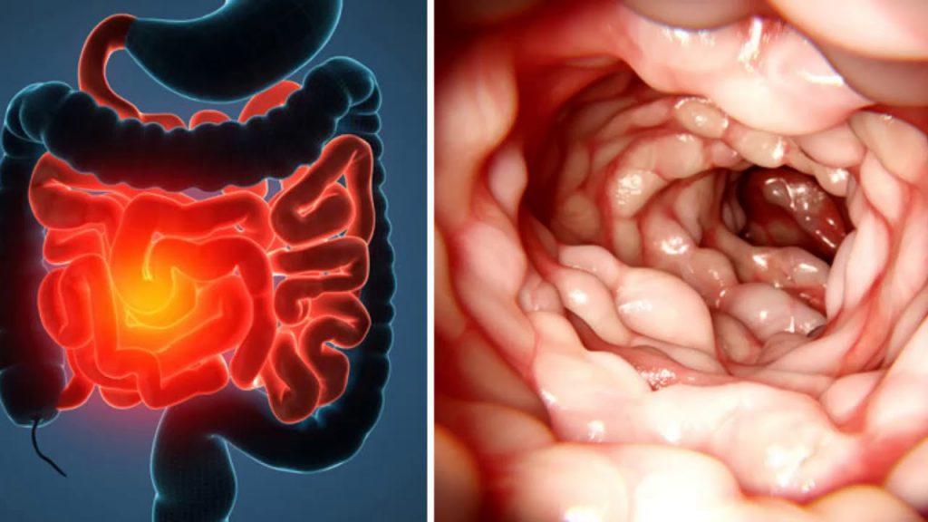 О болезни Крона: симптомы заболевания и методы борьбы с ним